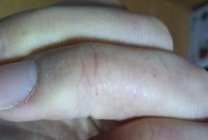 アカギレ 主婦湿疹.JPG