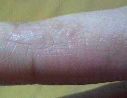 湿疹.JPG